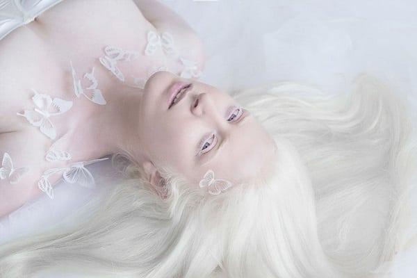 Этот нежный фотопроект об удивительных альбиносах заставит тебя по-другому взглянуть на «особенных»