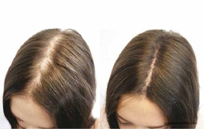 Выпадают волосы? Мезотерапия спасет и сделает вашу шевелюру гуще. Все плюсы и минусы процедуры