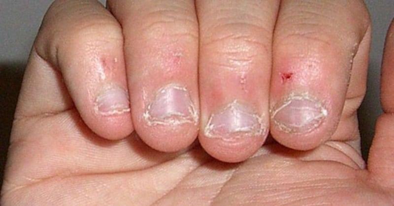 Мужчина лишился жизни из за вредной привычки грызть ногти