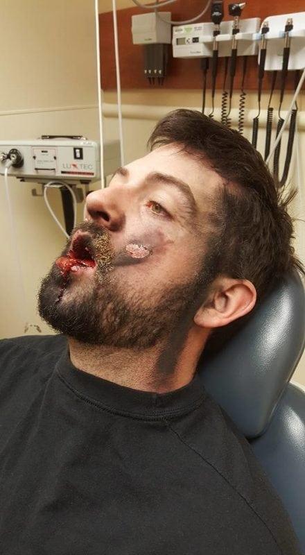 Электронная сигарета взорвалась у него прямо во рту!