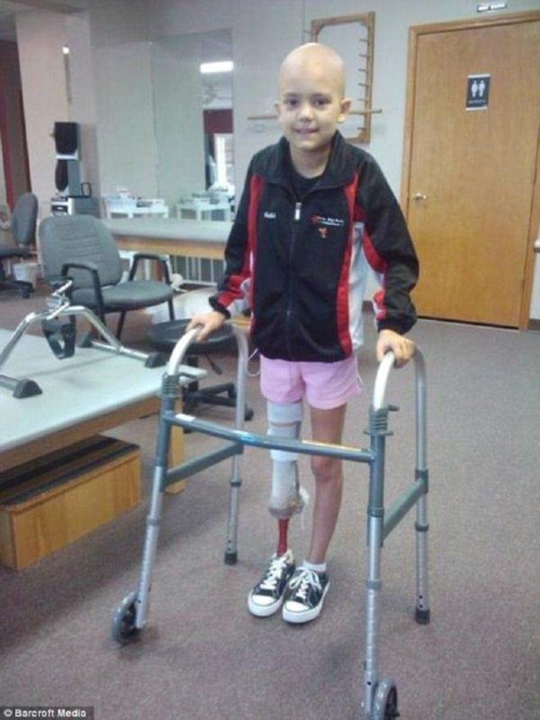 Она поборола рак, пережила ампутацию и даже научилась танцевать!
