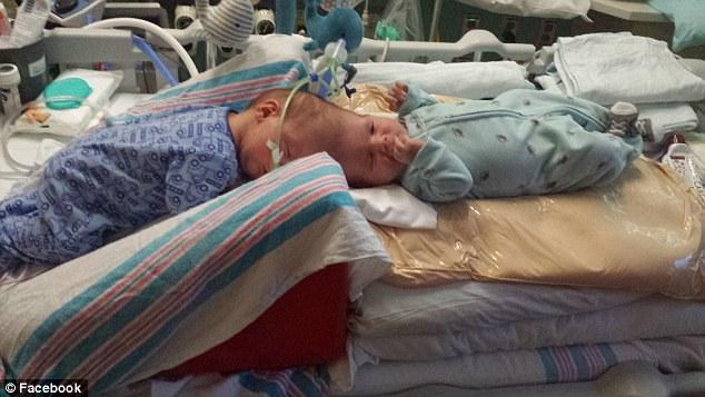 Операция по разделению сиамских близнецов со сросшимися головами прошла успешно!