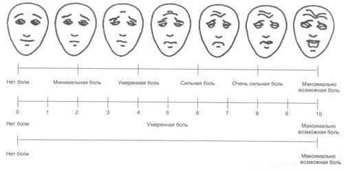 Полная информация о головной боли. Делится опытный врач!