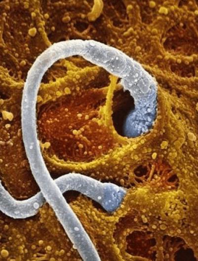 Уникальные кадры во время беременности: от эмбриона до человечка